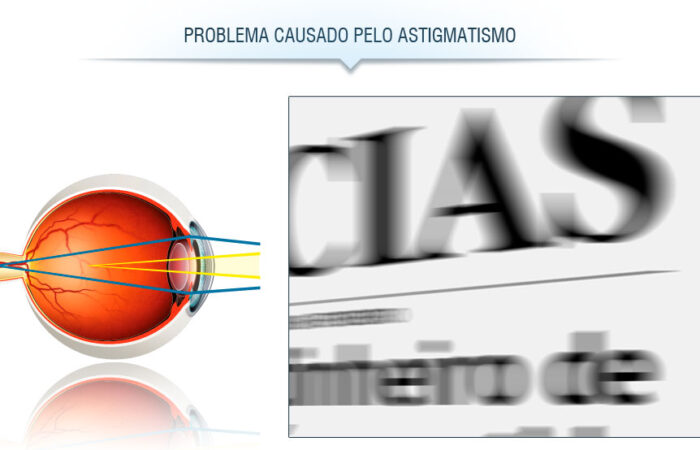 Problema de visão: astigmatismo