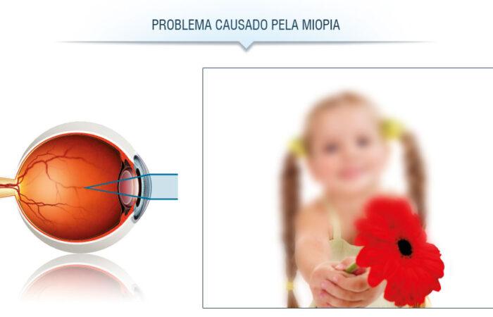 Problema de visão: miopia