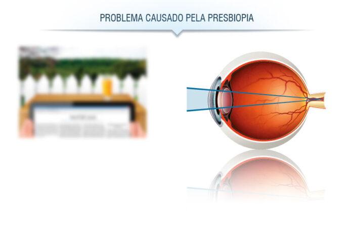 Problema de visão: presbiopia